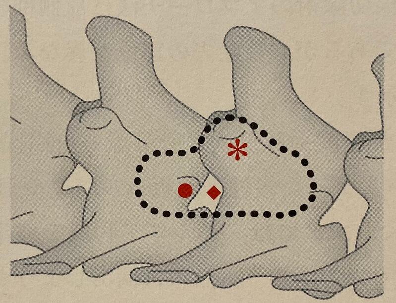 片側椎弓切除術